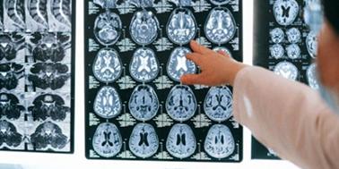 Investigación chilena muestra que ciertos alimentos podrían prevenir el Alzheimer