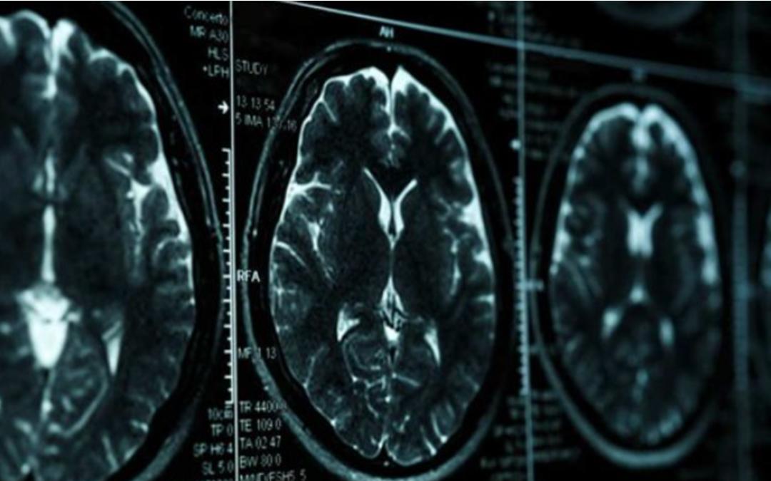 Día mundial del Alzheimer: Recomendaciones para prevenirlo.